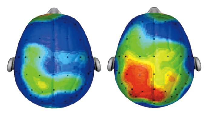 Brain-scan-run